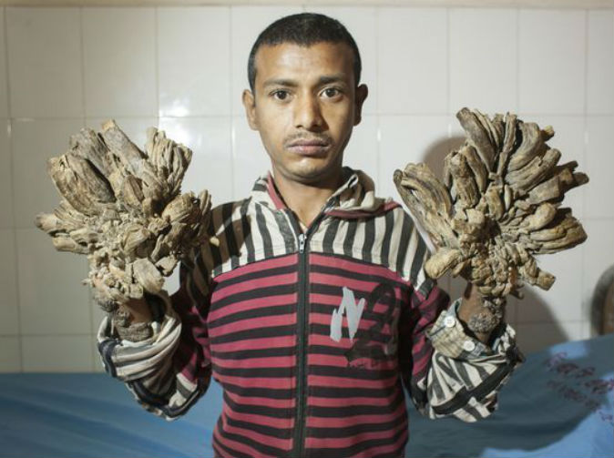 Man with rare skin disease has 'tree roots' growing from his hands