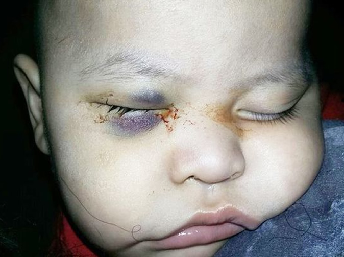 Baby blinded after 'surgeon removed the wrong eye in operation mix-up'