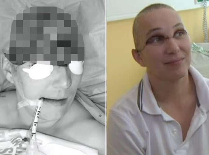 Woman has scalp torn off by electric drill