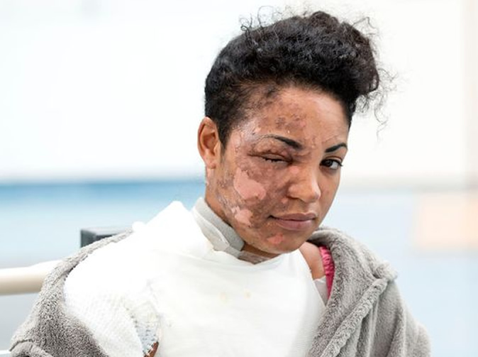 Smoothie blender explodes and scars woman's face