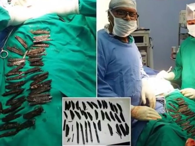 Man swallowed 40 knives because he liked the way they taste