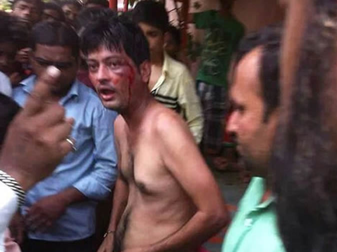 Lynch mob cut man's privates after catching him attacking teenage girl