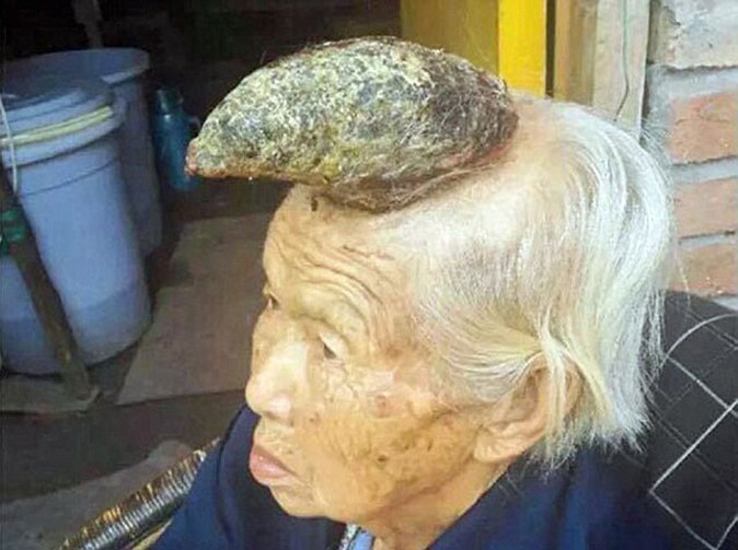 Horn grows out of woman's head
