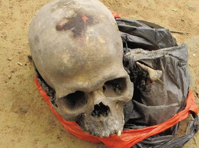 Human skull found in traditional healer's bag