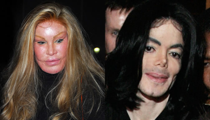 Celebrity Plastic Surgery Disasters