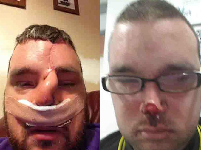 Man loses nose on night out, doesn't remember how