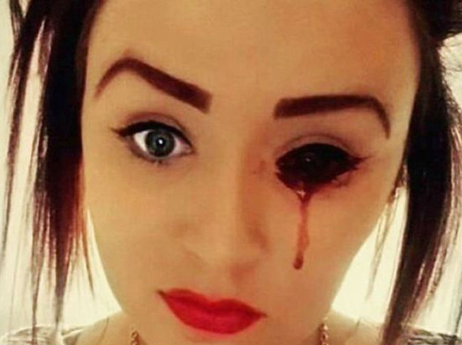 Girl bleeds from her eyes, ears and mouth