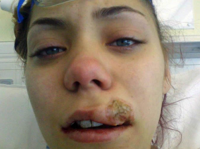 Model scarred after dentist's drill overheated and melted her lip