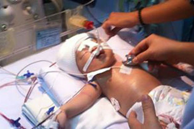 11-day-old baby stabbed in head by another patient