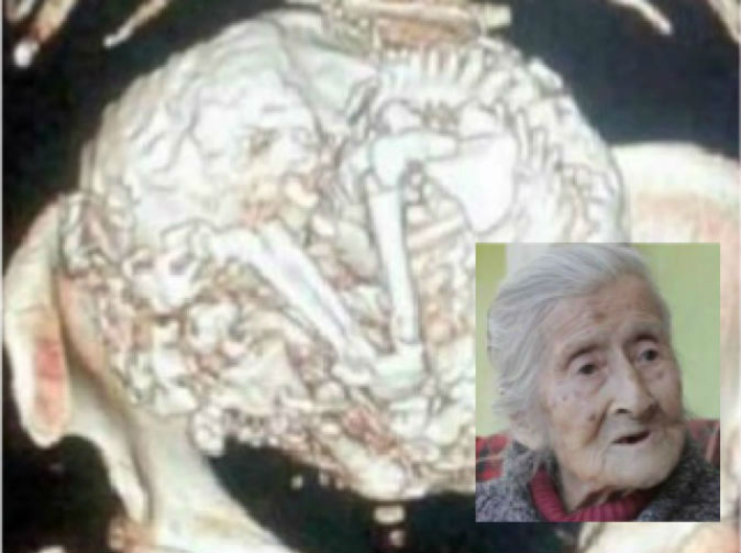 Woman pregnant for 60 years