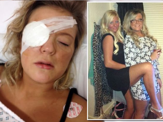 Drunk woman blinds best friend after stepping on her eye with stiletto heel