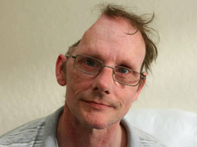 Man with half a head deemed fit to work, has benefits cut