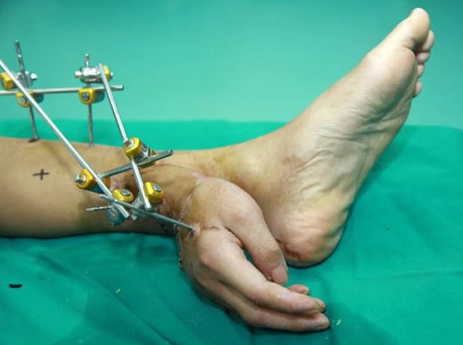 Man's severed hand saved by attaching it to ankle