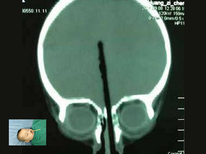 Two-year-old pushes chopstick up his nose, it disappeared into his brain