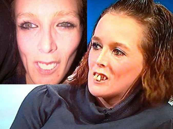Jeremy Kyle pays £10k for guest with terrible teeth to get them fixed