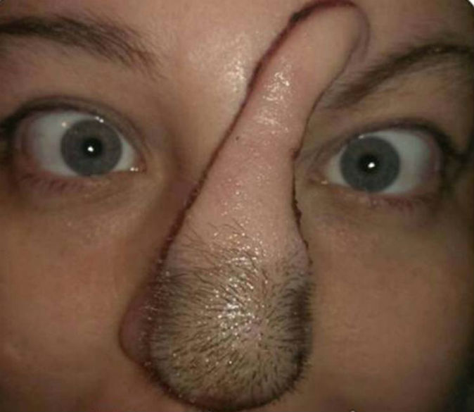 Woman given new nose using flesh from her scalp