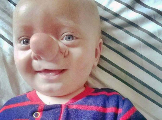 Baby born with part of his brain on his nose