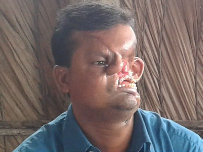Disfigured man reveals his face for first time since tiger attack