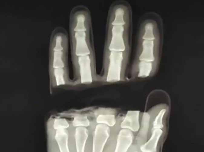 Doctors sew man's fingers back on after he severed all four
