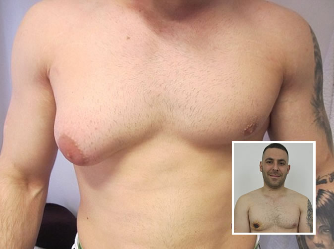 Man tries to slice off his B-cup breast
