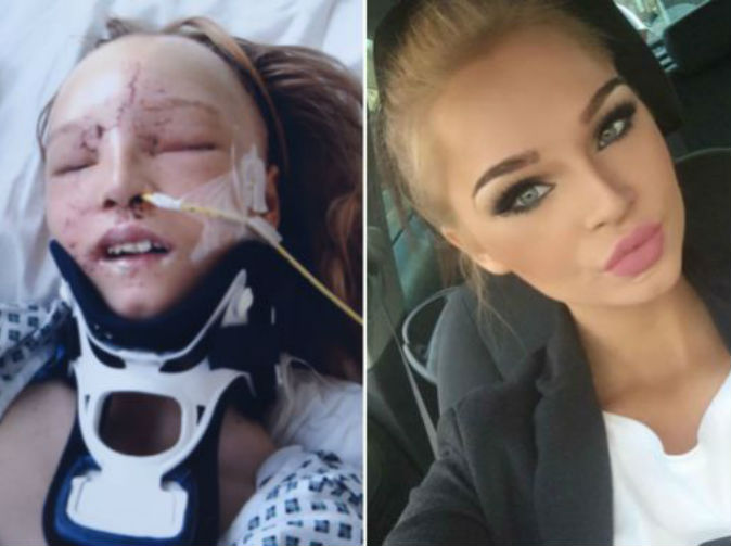 Teenager's face removed and rebuilt after car crash