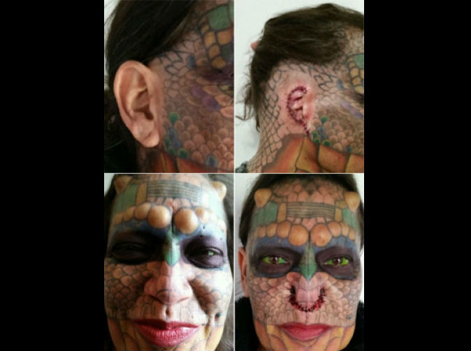 Transgender woman chops ears off, shaves nose to look like rattlesnake