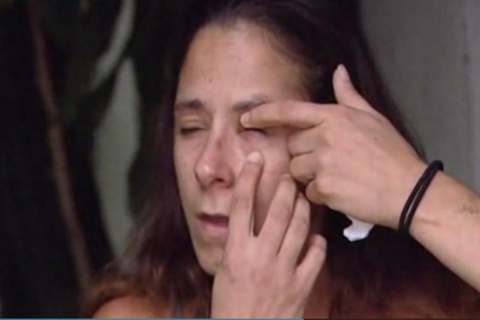 Woman glues eye shut after mistaking superglue for eye drops