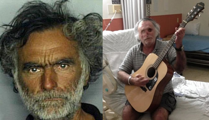 Victim of 'Miami cannibal' says he is not traumatized after half his face was gnawed off