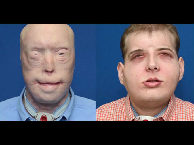 Firefighter who received a full face transplant adjusting to 'new normal'