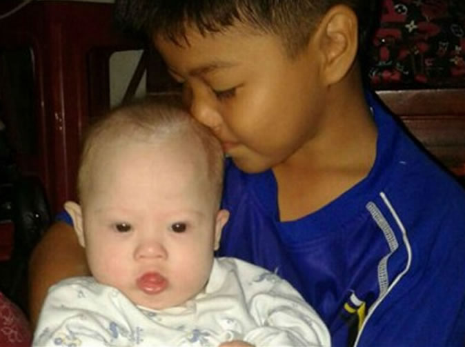Australian couple abandons surrogate twin with Down's syndrome but keep his sister