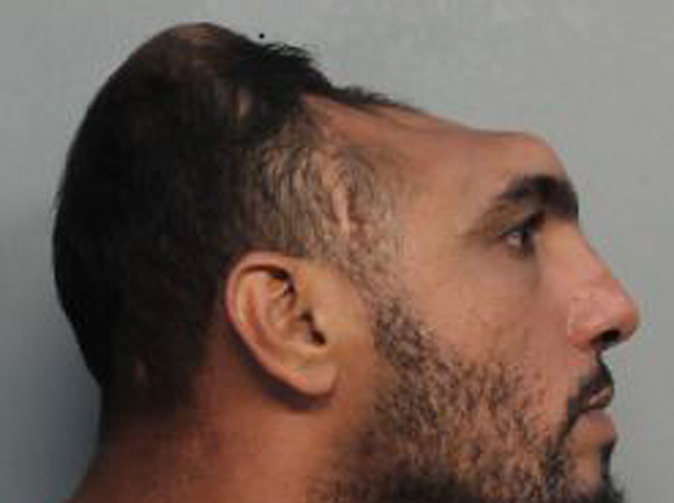 Man with half a head charged with attempted murder