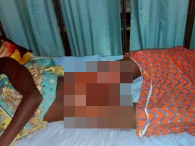 Teen's privates burnt after being accused of raping child