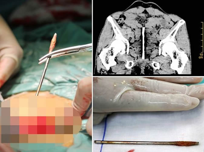 Impotent man almost dies after inserting metal rod into his privates