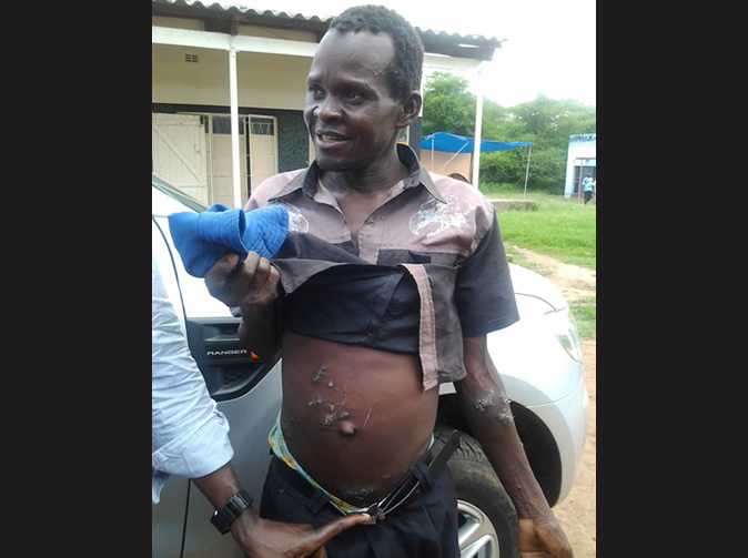 Man's trousers save him from crocodile