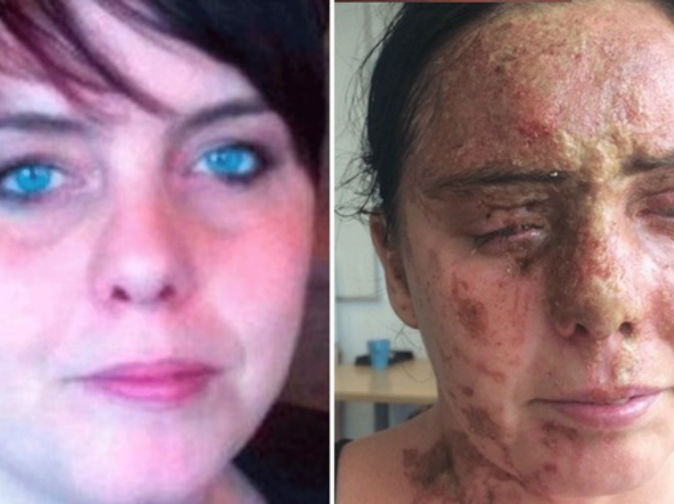Brothers to be sentenced for 'horrific' acid attack on mum-of-six