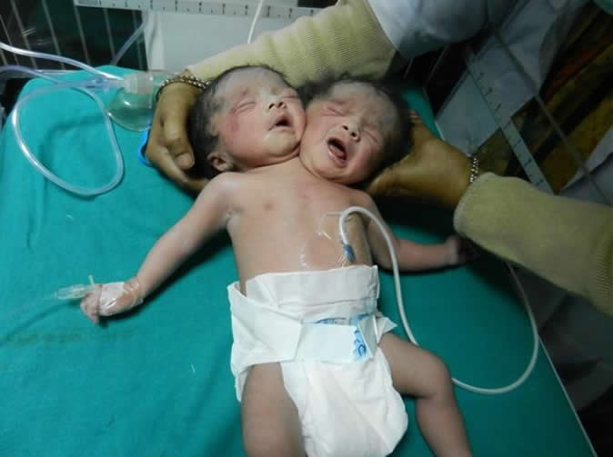 'Baby born with two heads' in India