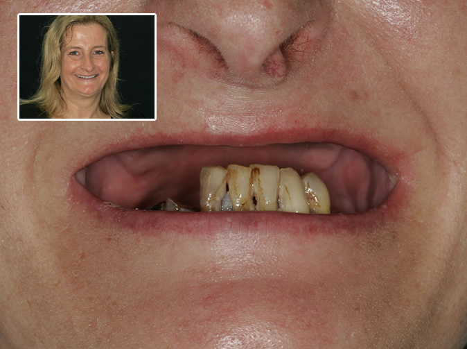 Dentist removes all of woman's upper teeth by mistake